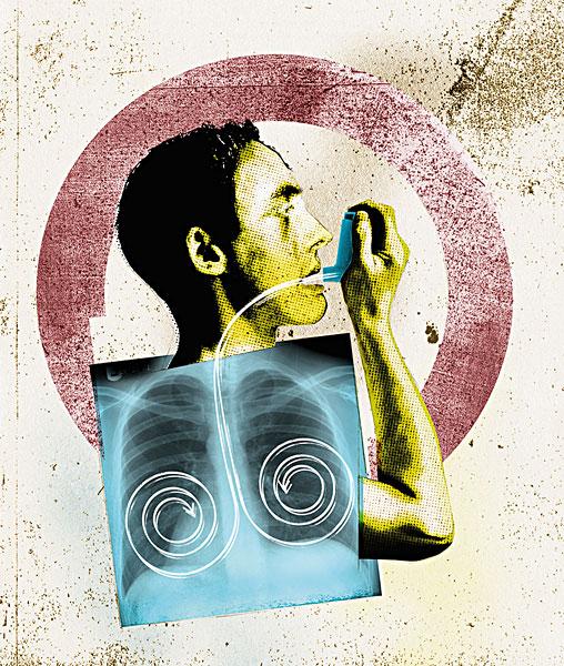 建议积极治疗一下炎症,肺部炎症恢复以后建议介入治疗一下卵圆孔就